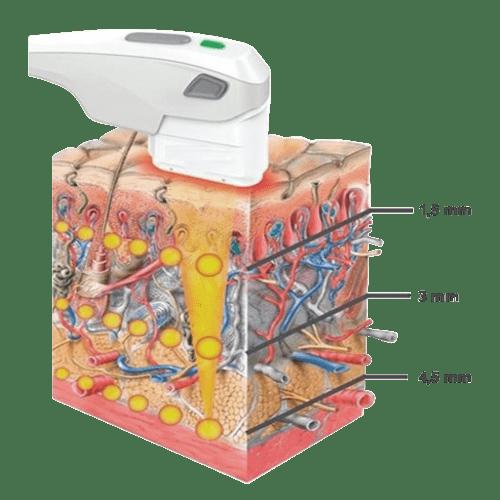 Technologie des Ultrasons focalisés HIFU